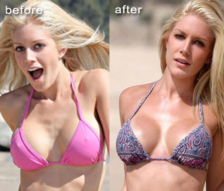 lindsey lohan boob chirurgie